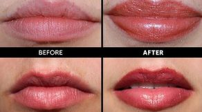 Full Lip